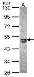 NBP1-33656 - Sorting nexin-15 (SNX15)