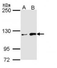 NBP1-33658 - HIPK1