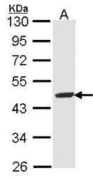 NBP1-33662 - Fumarylacetoacetase