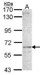 NBP1-33672 - LDB3
