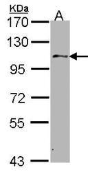 NBP1-33677 - USP10