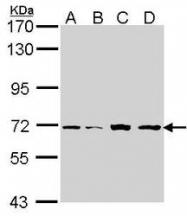 NBP1-33686 - IRAK2