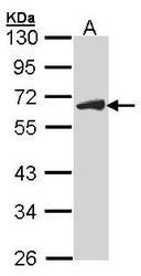 NBP1-33687 - CDC25C