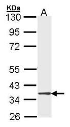 NBP1-33688 - DMC1 / LIM15