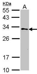NBP1-33693 - Maleylacetoacetate isomerase / GSTZ1