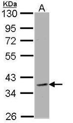 NBP1-33701 - CLCN2