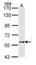 NBP1-33715 - TBX5