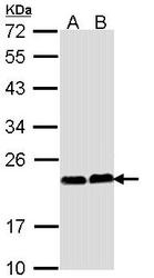 NBP1-33736 - Calcium-binding protein p22