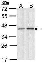NBP1-33751 - NAT2