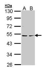 NBP1-33773 - PRKAR2B