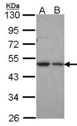 NBP1-33776 - Deoxyribonuclease gamma