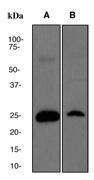 NBP1-40422 - Superoxide dismutase 2 / SOD2