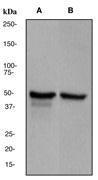 NBP1-40424 - GFAP