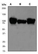 NBP1-40428 - Alpha-actinin-2 / ACTN2