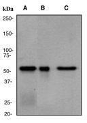 NBP1-40430 - CES1 / ACAT