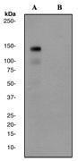 NBP1-40436 - HGF receptor