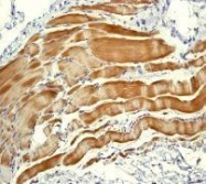 NBP1-40456 - Alpha-actinin-2 / ACTN2