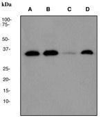 NBP1-40457 - CDK4