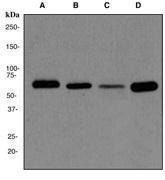 NBP1-40471 - Catalase