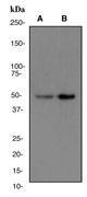 NBP1-40491 - AP2 complex subunit mu-1 / AP2M1