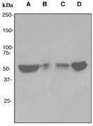 NBP1-40637 - Acetylcholine receptor beta subunit