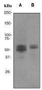 NBP1-40644 - RUNX1