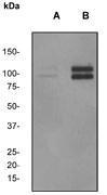 NBP1-40657 - Catenin delta-1