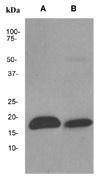 NBP1-40660 - Pleiotrophin / PTN