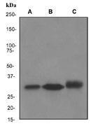 NBP1-40663 - NQO1