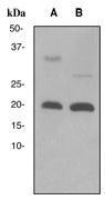 NBP1-40687 - Interleukin-2 / IL2