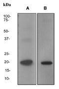 NBP1-40700 - Rhombotin-2