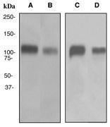 NBP1-40707 - CD61 / ITGB3