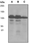 NBP1-40713 - ILF3 / DRBF