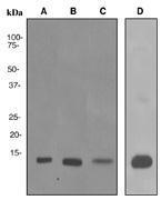 NBP1-40751 - S100A9 / Calgranulin-B / MRP14