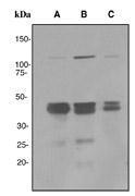NBP1-40773 - EGLN2 / PHD1