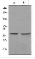 NBP1-40777 - Estrogen receptor beta