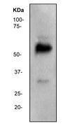 NBP1-40787 - WT1 / Wilms tumor protein
