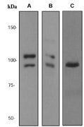 NBP1-40795 - Catenin delta-1
