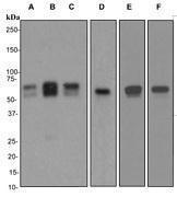 NBP1-40798 - Calreticulin