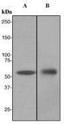 NBP1-40813 - Cytokeratin 4
