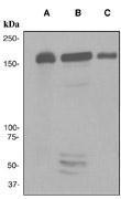 NBP1-40816 - MSH6