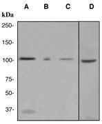 NBP1-40818 - MSH2