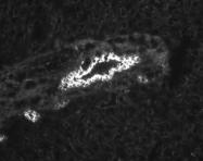 NBP1-42238 - Cytokeratin 19