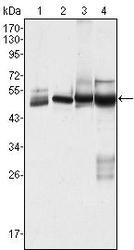 NBP1-42565 - Cytokeratin 7