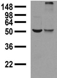 NBP1-44510 - GABRA1