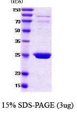 NBC1-18405 - 14-3-3 protein beta/alpha