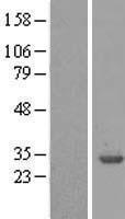 NBL1-17947 - 14-3-3 beta/alpha Lysate