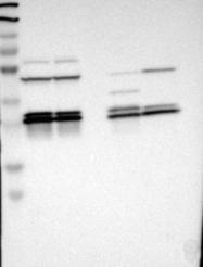 NBP1-89827 - 14-3-3 protein epsilon