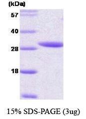 NBC1-18392 - 14-3-3 protein epsilon