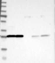 NBP1-90337 - 14-3-3 protein theta